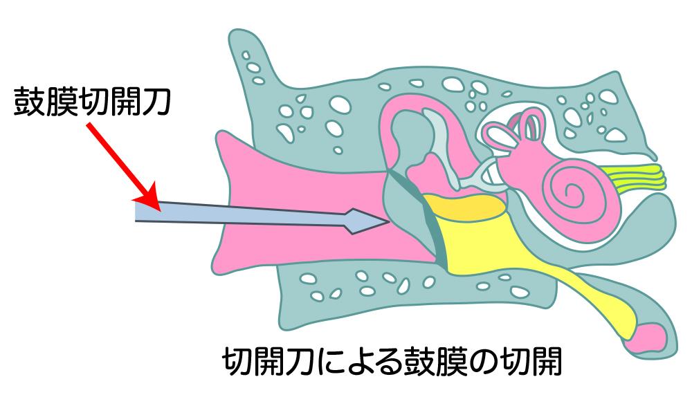 滲出性中耳炎の治療