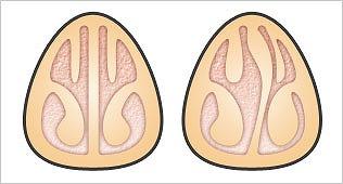 鼻閉や鼻出血を起こす鼻中隔弯曲症